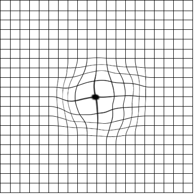 picture relating to Printable Amsler Grid identify Amsler Grid